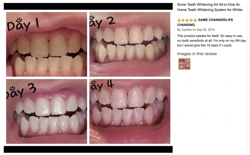 Instant Teeth Whitening Products